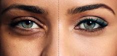 Kök hücre ile göz altı dokularını gençleştirme ve rengini
