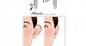 kepçe kulak