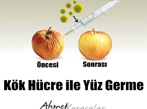 kok_hücre