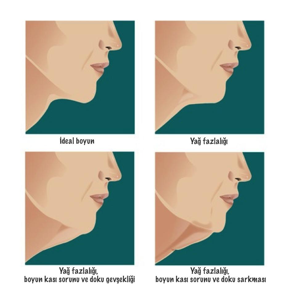 Profiloplasti' yöntemi