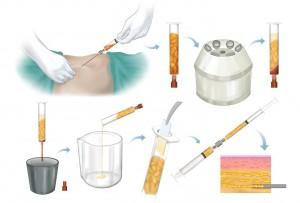 yağ-enjeksiyonu